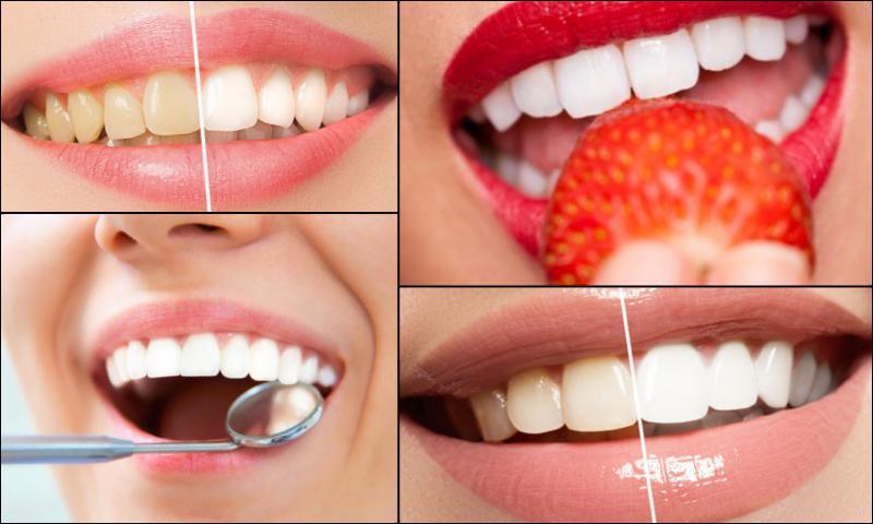 Diş Kaplaması Çeşitleri
