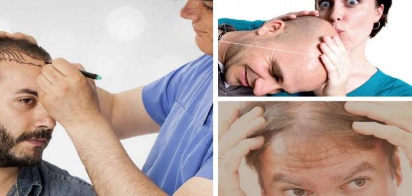 Genel Olarak Avrupa'da Saç Ekimi Yapılması