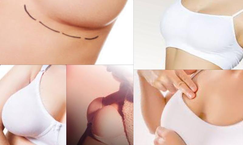 Göğüs Revizyon Ameliyatı Nasıl Yapılır?