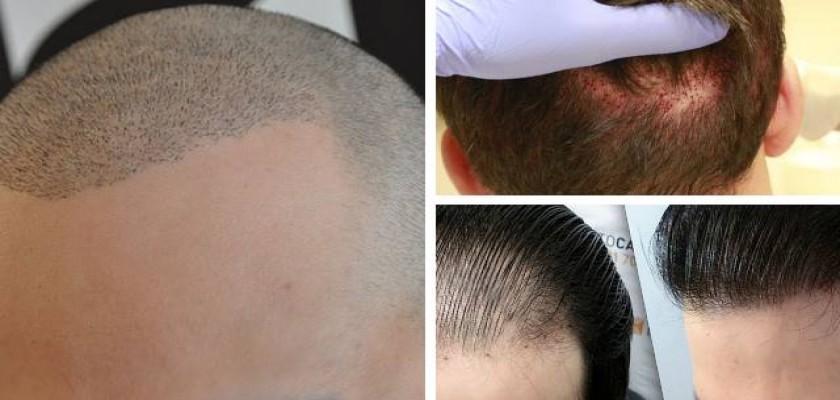 Saç Ekiminin Zararı Olur mu