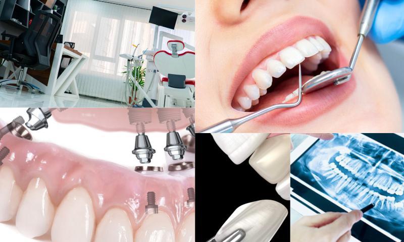 Gülüş Estetiğinde Diş Beyazlatma Teknikleri